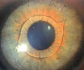 Ein Auge mit eingesetzter intrakularen Linse-IOL