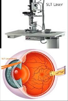 SLT Laser zur Behandlung des Glaukoms